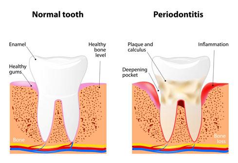 Gum Disease Blanco TX